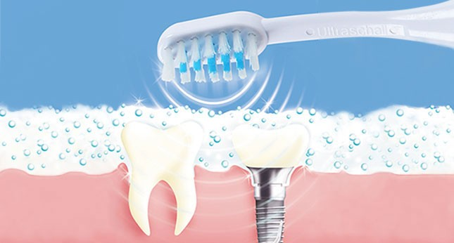 The ultrasonic toothbrush | emmi®-dent